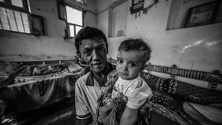 yemen brotes colera.jpg