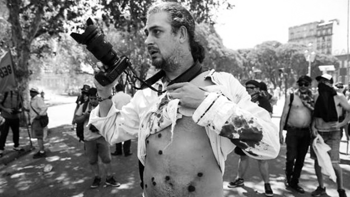 piovano-herido-represion
