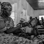 El rostro más duro de la pobreza en Etiopía